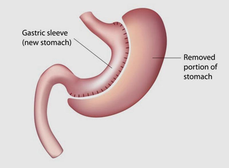 Andrea Lucchi chirurgo dell'obesita sleeve gastrectomy rimozione del fondo gastrico